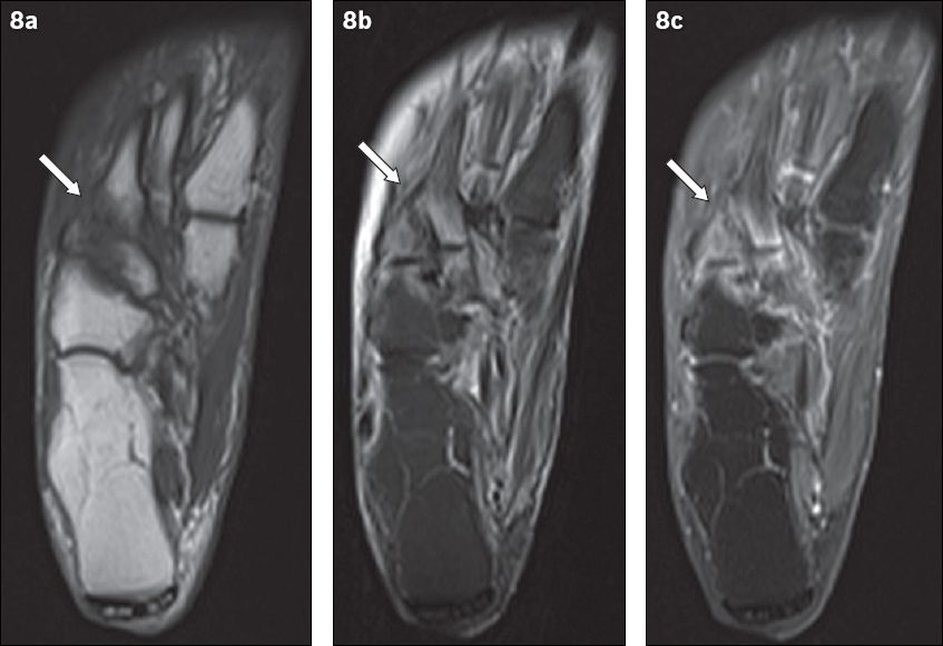 Magnetic resonance imaging of diabetic foot complications | SMJ