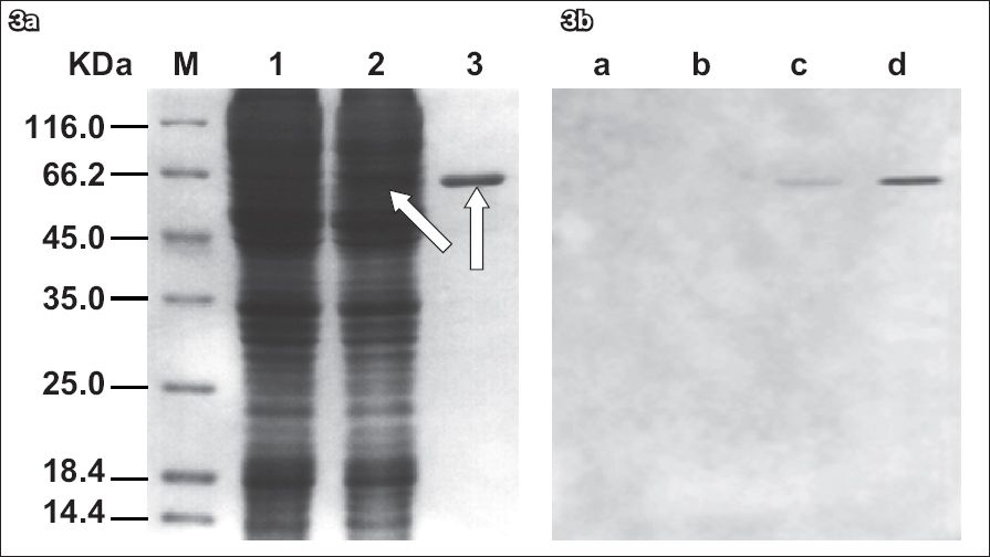 Production of a fragment of glycoprotein G of herpes simplex