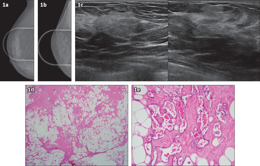 Four cases of echogenic breast lesions: a case series and