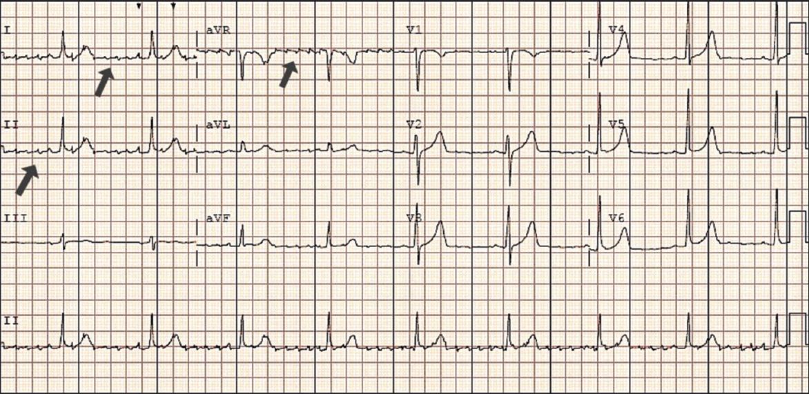 Rhythmic chaos: irregularities of computer ECG diagnosis   SMJ