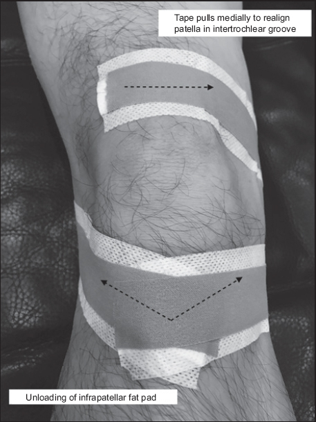 Outpatient management of knee osteoarthritis | SMJ