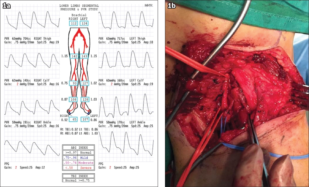 Popliteal Artery Entrapment Syndrome In A Singaporean Mixed Martial