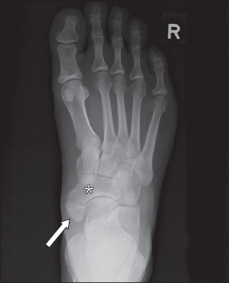 Common Accessory Ossicles Of The Foot Imaging Features Pitfalls And Associated Pathology Smj Accessory navicular bone was identified in 34 cases (20%) of the 170 exams. singapore medical journal
