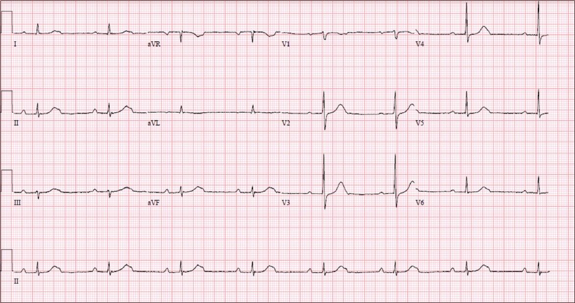 mobitz type 2 heart block