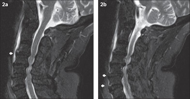 Clinics in diagnostic imaging (192) | SMJ