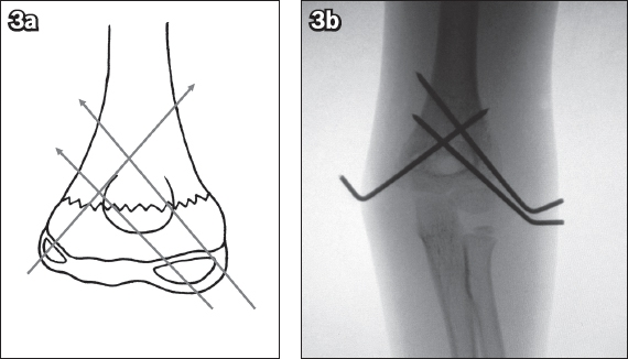 Image result for supracondylar fracture of humerus k wire surgery